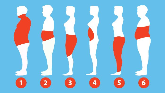 Types of Obesity Surgery