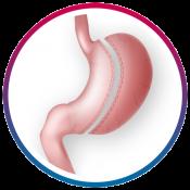 sleeve-gastroextomy1